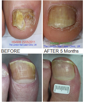 LUNALAR-LASER---before-and-after-lunalar-laser